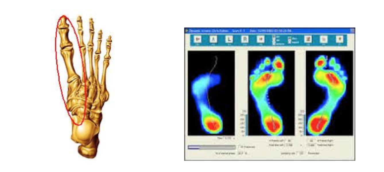 Estudio de la pisada pie - Estudio biomecanico de la pisada ...