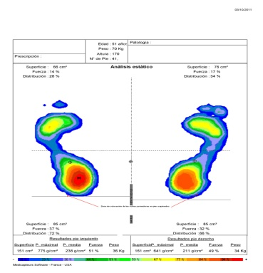 Tendinitis del tibial posterior estudio biomecanico de for Estudio de pisada